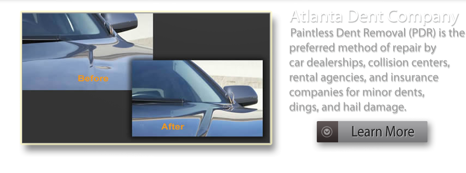 Paintless Dent Removal by Atlanta Dent Company | Roswell, GA